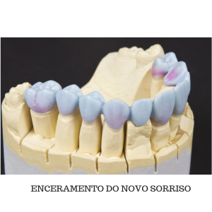 Enceramento dental